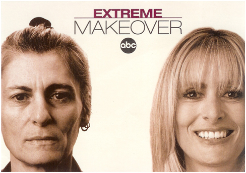 Most Of The Extreme Makeover Tv Show Patients Spent 6 To 8 Weeks In Los Angeles During Their Recovery Sandra Was Highlighted Promotional Card
