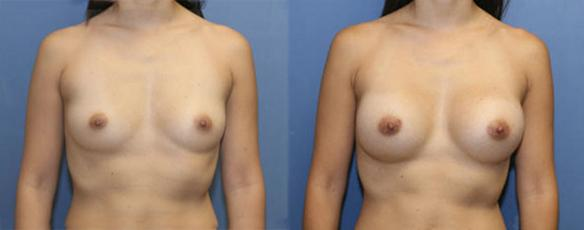 breast enlargement A cup size to a C cup size Asian female