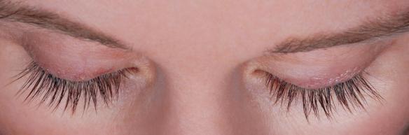 Eyelashes after Latisse thickening and darkening.