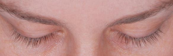 Eyelashes before Latisse