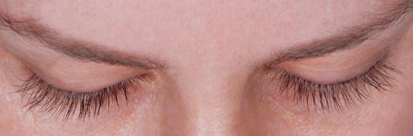 Eyelashes after latisse