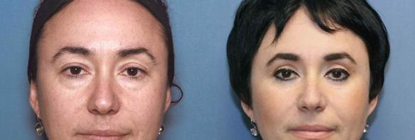 Cosmetic eyelid lift, upper and lower blepharoplasty, facial plastic surgery