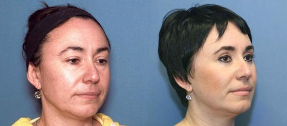 Beverly Hills cosmetic surgery, eyelid, lift, cosmetic surgeon