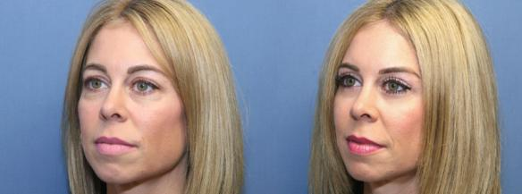 blepharoplasty or eyelid lift upper and lower lids.
