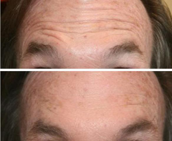 wrinkle treatment forehead with botox or Xeomin