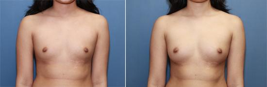 fat transfer, breast augmentation, breast enlargement, B cup