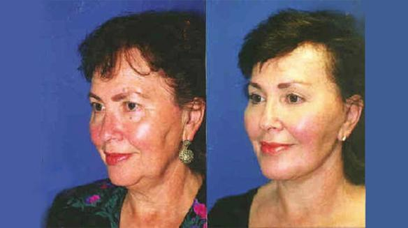 Brow lift and face lift and neck lift Beverly Hills