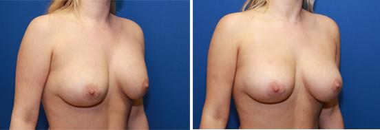 Capsule contracture treatment by capsulectomy and exchange from saline to silicone breast implants.