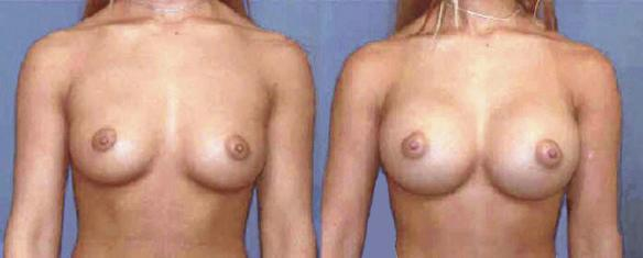 D cup size breast enlargement with breast implants.