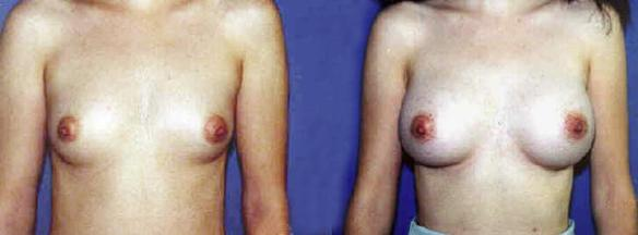 D cup breast enlargement.