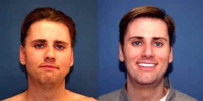 Male rhinoplasty with chin enlargement