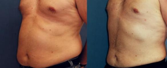 liposuction of male abdomen and chest