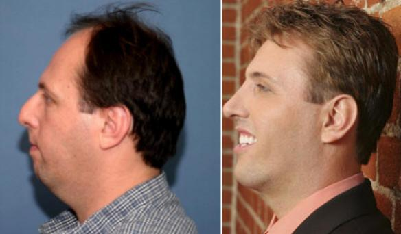 rhinoplasty, nosejob, male