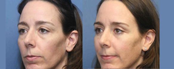 upper eyelid lift and lower eyelid lift plastic surgery
