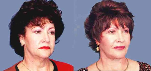 upper blepharoplasty or eyelid lift, facelift