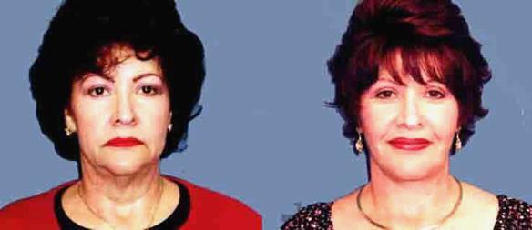 upper lid lift or blepharoplasty facelift