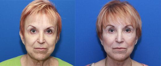 browlift, facelift and necklift with CO2 laser peel of mouth and lower eyelids