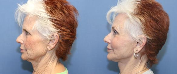 face lift, neck lift, brow lift, fat injections