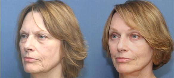 eyelid lift or blepharoplasty with brow and face lifts.