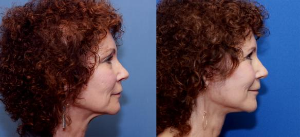 This patient underwent a face lift and neck lift with transfer of fat to restore volume and rejuvenate her skin with stem cells.