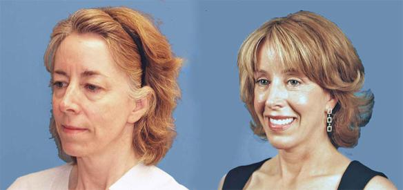 facelift, browlift, necklift fat grafting Extreme Makeover Dr. Perlman