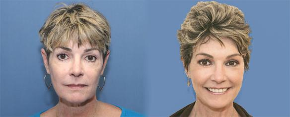 facelift, necklift and CO2 laser face peel.