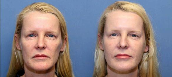 filler injections to the face Juvederm or Restylane