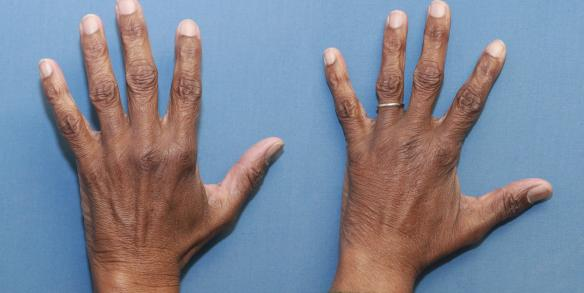 hand filler injection  Radiesse