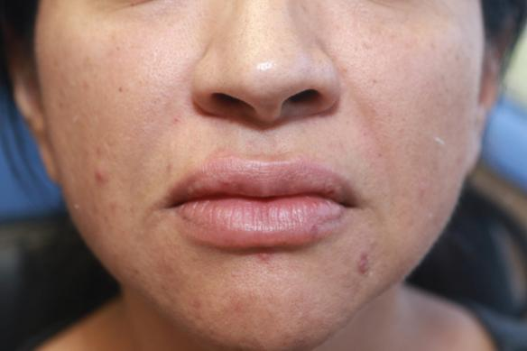 Lip enlargement and augmentation with Juvederm Ultra XC after photo