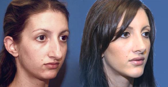 lip enlargement, fat grafting, Beverly Hills, CA