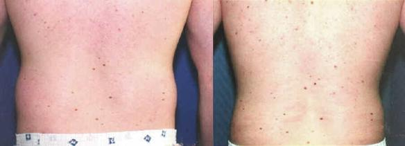 liposuction of trunk or hip rolls male