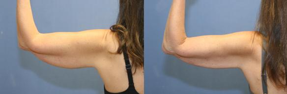 Arm liposuction Beverly Hills Orange County Newport Beach