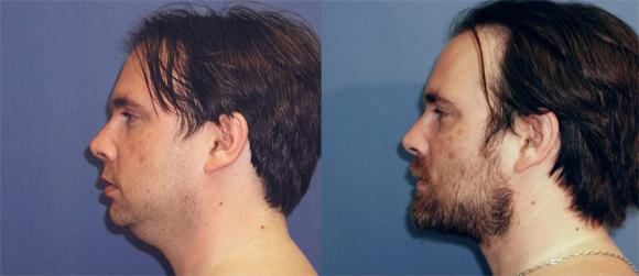 Neck liposuction and fat excision, buccal fat pad, chin implant, fat injection to cheeks.