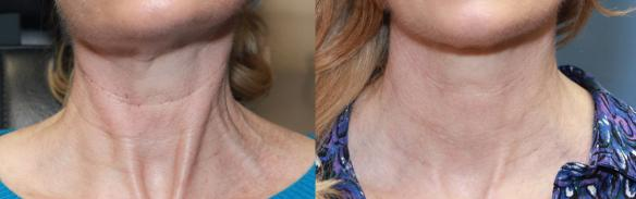 Neck wrinkles treated with Belotero and botulinum toxin