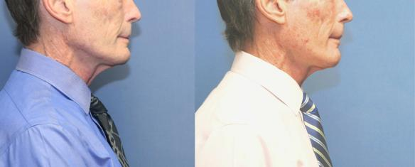 iLipoXcell RF skin tightening neck