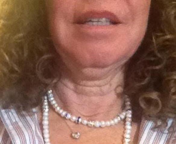 neck lift plastic surgery