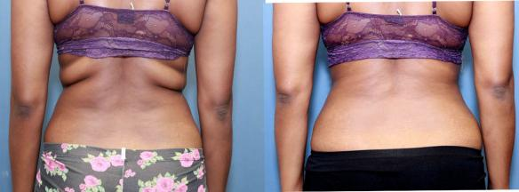 liposuction of back