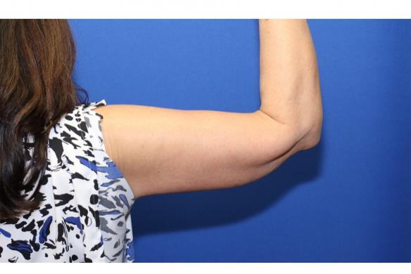 Arm lift or Brachioplasty following weight loss