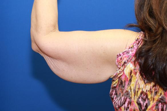 Arm Reduction following weight loss