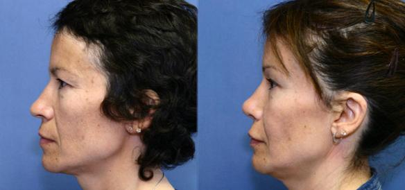 rhinoplasty hispanic Los Angeles