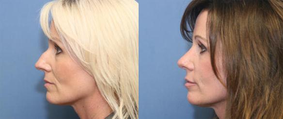 cosmetic nose surgery or rhinoplasty