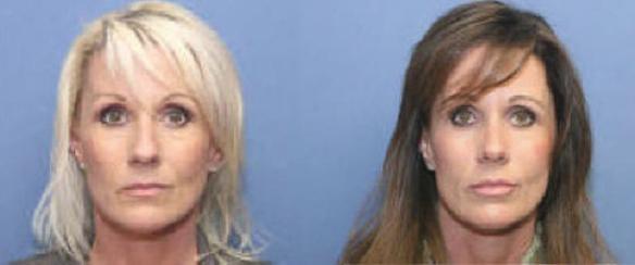 Beverly Hills rhinoplasty, cosmetic rhinoplasty, nosejob