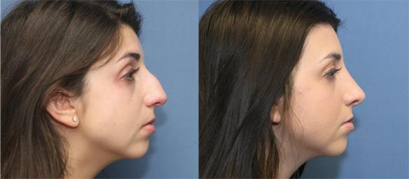 Cosmetic rhinoplasty Beverly Hills