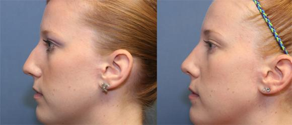 Cosmetic rhinoplasty or nosejob, female, Beverly Hills