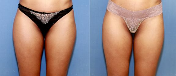 liposuction of saddlebags and thighs for an athletic woman