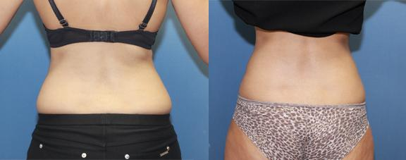 "liposuction of the hip rolls or ""grab handles."""