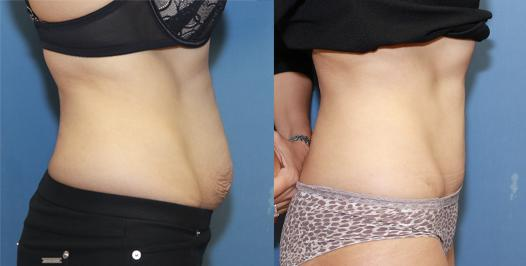 full tummy tuck after two pregnancies.