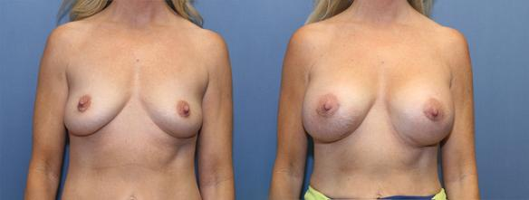 D cup size breast augmentation Beverly :HIlls