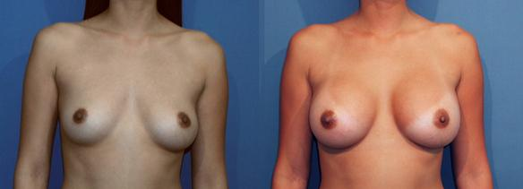 full C cup size breast augmentation with breast implants.