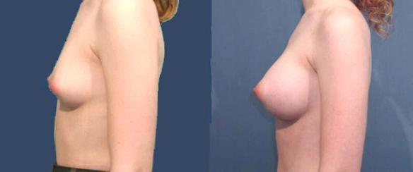 breast augmentation, breast enhancement, breast implants C cup size